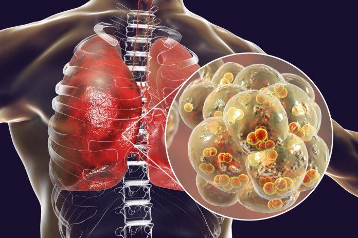Τρισδιάσταση απεικόνιση του καρκίνου του πνεύμονα