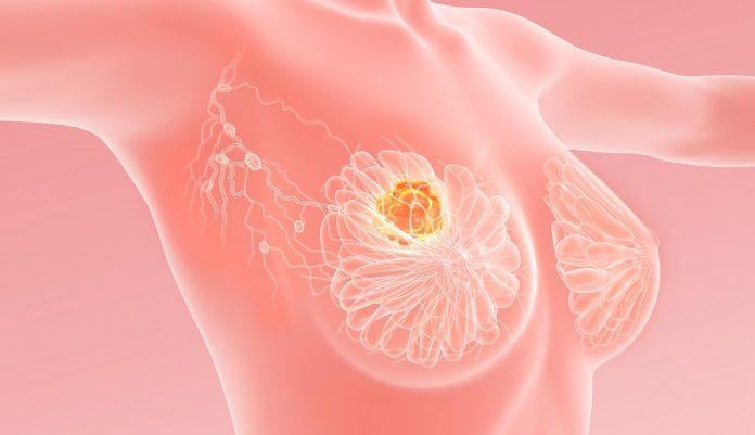 Τρισδιάστατο σωληνώδες καρκίνωμα