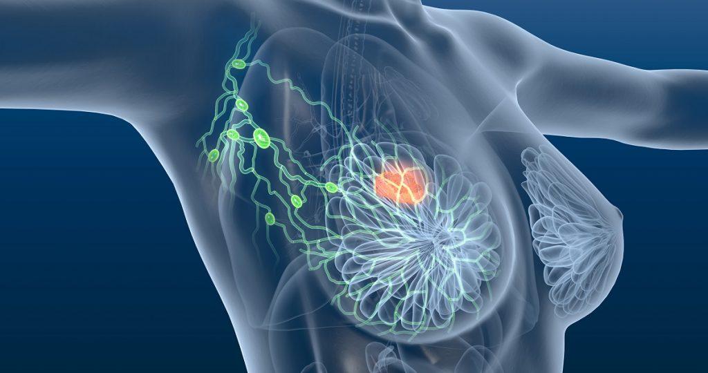 Τρισδιάστατο Αδενοκυστικό καρκίνωμα