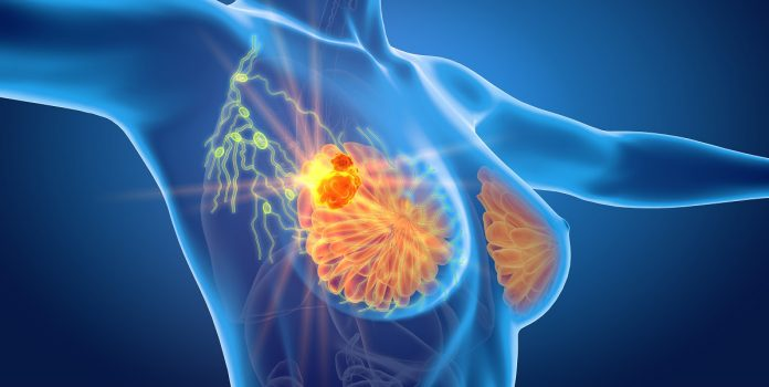 Τρισδιάστατο θηλώδες καρκίνωμα