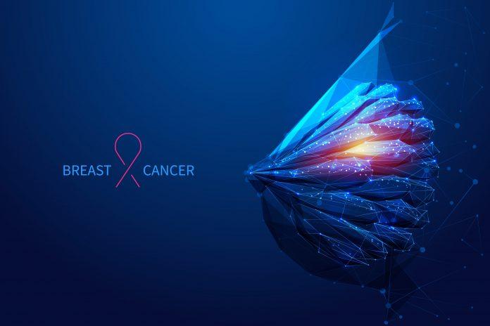 Καρκίνος στο στήθους