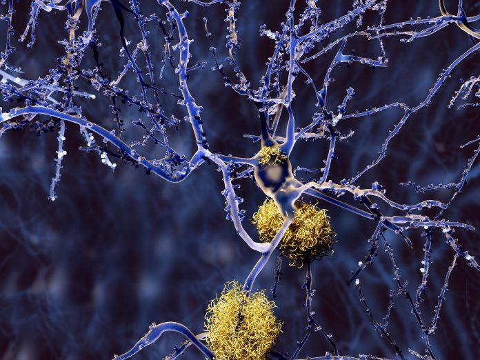 Εγκεφαλονωτιαίο υγρό σε μικροσκόπιο