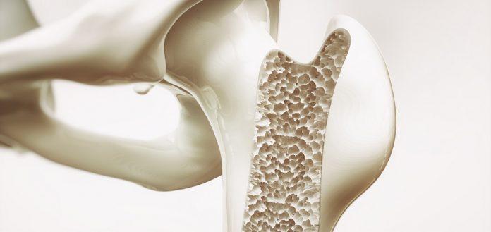 Τομή οστού με οστεοπόρωση