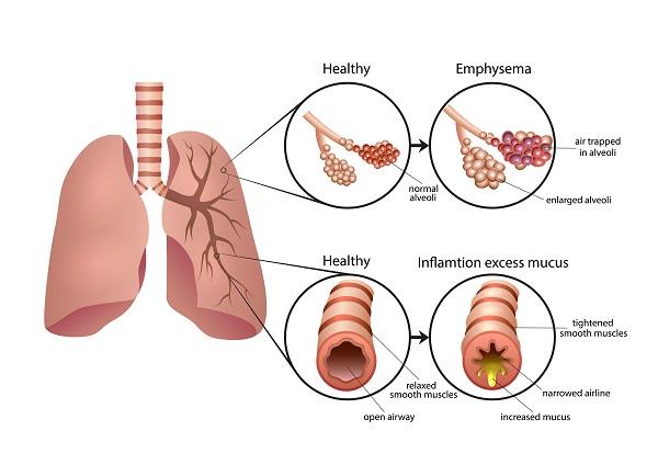 βροχγιτιδα-συμπτωματα-θεραπεια