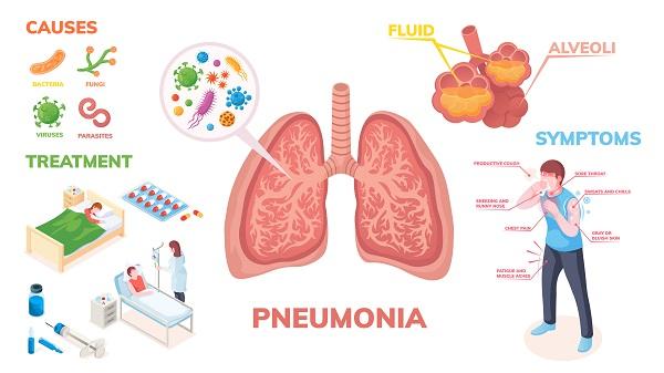 πνευμονια αιτιες και διαγνωση