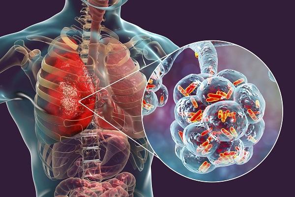 πνευμονια θεραπεια